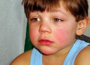 Enfant allergique