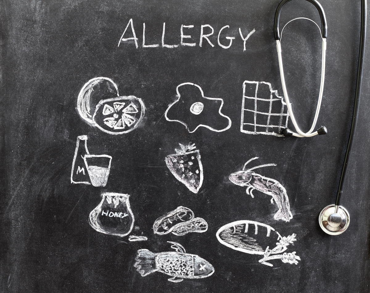 Allergies alimentaires ©udra11 shutterstock