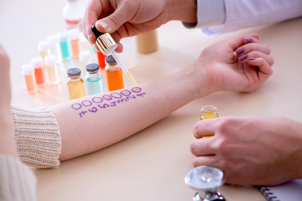 Test allergique ©Elnur shutterstock